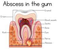 Abscess in the Gum Diagram. Illustration vector illustration