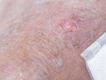 Abscess skin. Abscess wound.foot of man Royalty Free Stock Photography