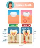 Abscess tooth vector illustration. Labeled medical diagram with structure. Compared isolated infected root canal with healthy. Personal oral mouth hygiene to stock illustration