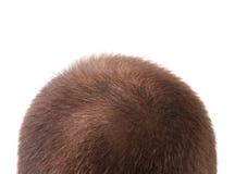 Abschluss oben von bemannt Kopf. Stockbild