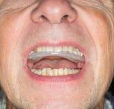 Abschluss oben von Zähnen schützen im älteren Mund Lizenzfreie Stockbilder