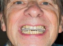Abschluss oben von Zähnen schützen im älteren Mund Stockbild