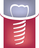 Abstract dental tooth sign Royalty Free Stock Photos