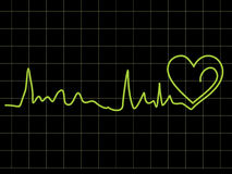 Abstract heart beat chart Stock Photo