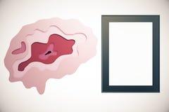 Abstract hersenen en kader Royalty-vrije Stock Afbeelding