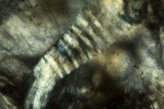 Abstract, polarizing micrograph of muscle fibers from an earthwo Stock Image