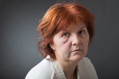 Abused woman Stock Image