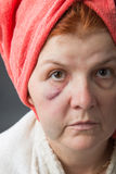 Abused woman Royalty Free Stock Photography