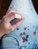 Accident sur le tissu image libre de droits
