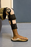 Accident victim. Young African American involved in a car accident, close up limb, healthcare series royalty free stock photography