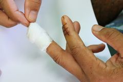 Accidental wounds At the fingers Fingernails, nails, stitches and cure. Accidental wounds fingers fingernails stitches cure royalty free stock image