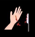 Accidente del cuchillo de la mano Fotos de archivo