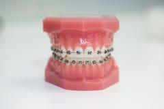 Accolades en métal, modèle orthodontique photo libre de droits