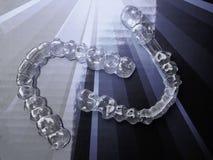 Accolades ou dispositif d'alignement d'Inivisalign Une mani?re d'avoir un beau sourire et des dents blanches illustration de vecteur