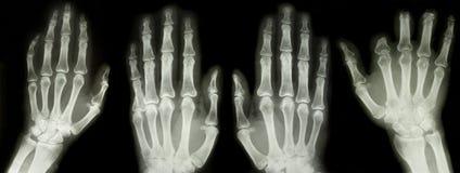 Accumulazione dei raggi X Fotografia Stock