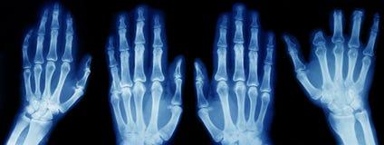 Accumulazione dei raggi X Fotografia Stock Libera da Diritti
