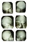 Accumulazione del cranio nei toni origimal di b/w Fotografie Stock
