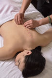 Accupuncture von Dornhänden auf chinesischer Medizin Stockfotos