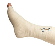 Ace bandage right foot. Right foot and ankle wrapped in an ace bandage isolated with clipping path at this size Stock Images