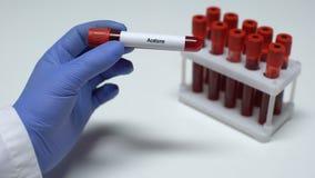 Acetone, medico che mostra campione di sangue in tubo, ricerca del laboratorio, controllo di salute video d archivio