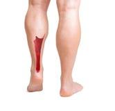 Achilles ścięgno z niskimi noga mięśniami obraz stock