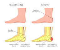Achilles bursitis Arkivbilder