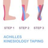 Achilles kinesiology nagrywać ilustracji