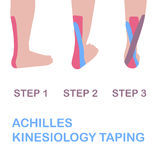 Achilles kinesiology taping.. Vector illustration Stock Photos