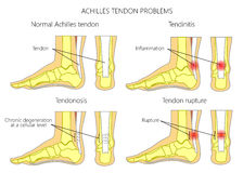Achilles Tendon Injures Royalty Free Stock Photography