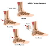 Achilles tendon problems. Achilles tendon normal and different problems as a result of sport injury, eps8 Stock Photo
