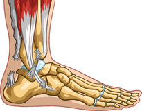 Achilles Tendon Rupture Royalty Free Stock Photography