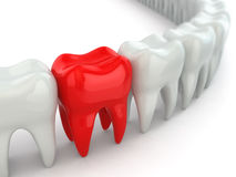 Aching tooth in row of healthy teeth. Royalty Free Stock Photography