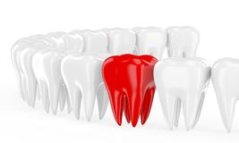 Aching tooth in row of healthy teeth Stock Image