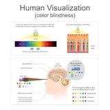 Achromatopsie humaine de visualisation Photos libres de droits