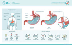 Acid reflux and heartburn infographic Royalty Free Stock Photos