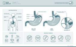 Acid reflux and heartburn infographic Stock Image