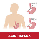 Acid reflux stomach disease Royalty Free Stock Photos