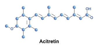 Acitretin is a second-generation retinoid Stock Image