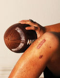 ACL Football injury. High School ACL knee football injury Royalty Free Stock Images