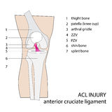 Acl knee injury Royalty Free Stock Image