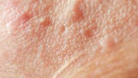 Acné enquistado esférico en la piel Primer El concepto de dermatología metrajes