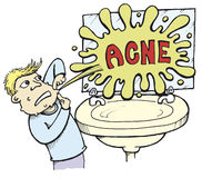 Acne_01 Royalty Free Stock Photo