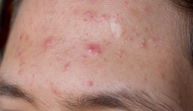 Acne. Male with acne on his forehead Stock Photography