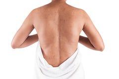 Acne on body skin. On white background Royalty Free Stock Photos