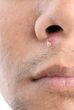 Acne. Closeup acne on young asian man face royalty free stock images