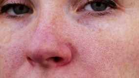 Couperose on the nose of a young attractive girl. Capillary mesh treatment concept. Acne on the face. Examination by a doctor. Acne on the face. Examination by a stock footage