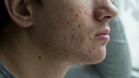 Acne on a face of a man