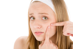 Acne facial care teenager woman squeezing pimple Royalty Free Stock Images