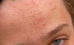 Acne forehead. Young caucasian boy acne forehead and blue eye stock images