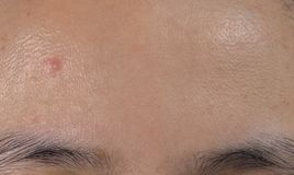 Acne on forehead of oily skin Asian woman. Close comedones. Royalty Free Stock Images